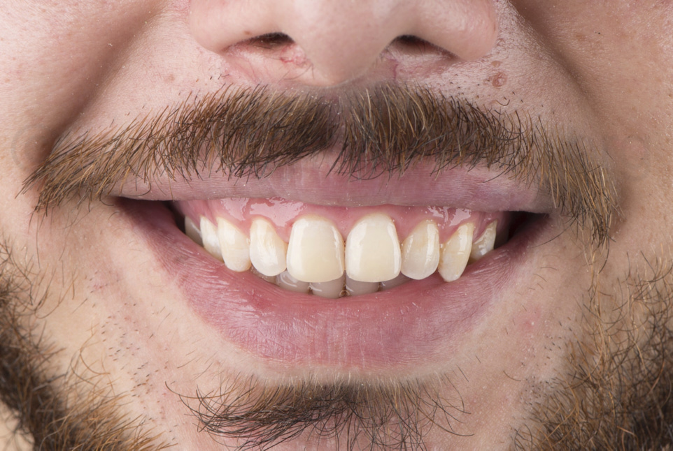 patient smiling with new dental restorations