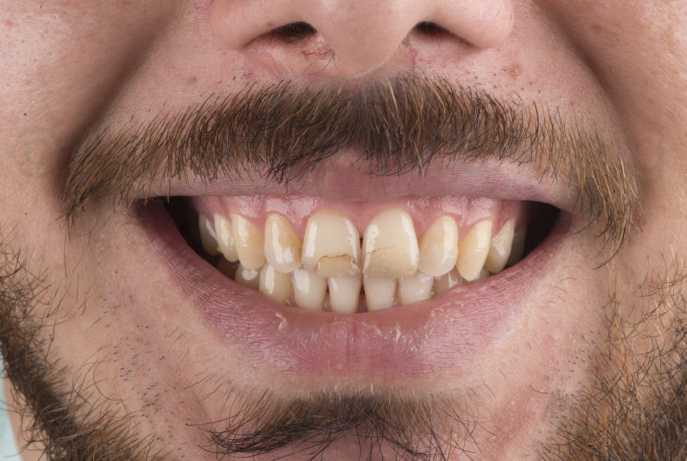 man smiling with worn restorations