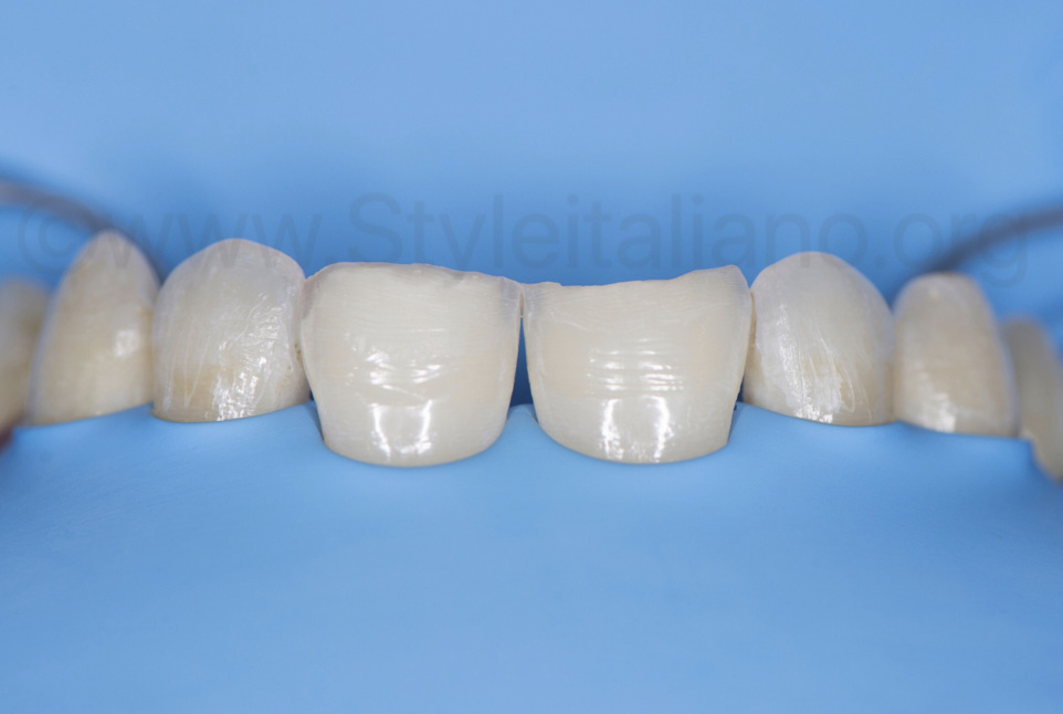 invasive preparation of central incisors for class IV restorations