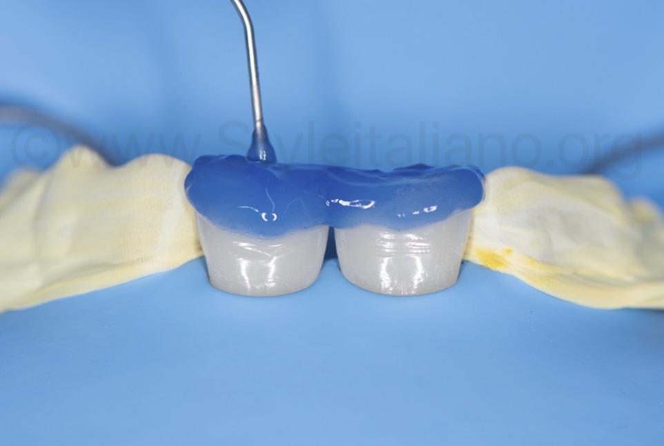 acid etching of enamel and dentin