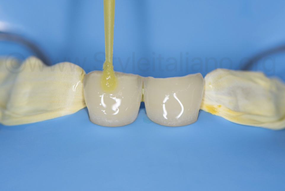 bonding application and protection of adjacent teeth with teflon