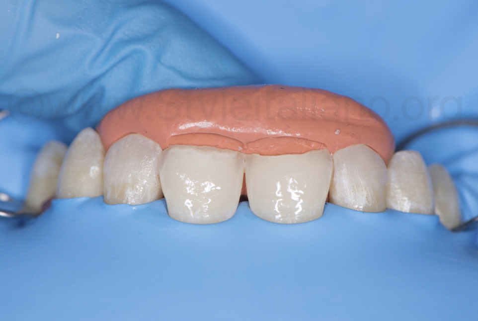 silicone index positioned to build palatal shells with composite