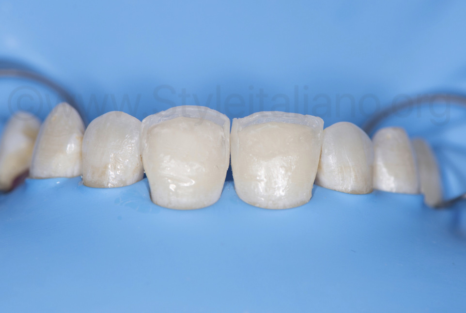 composite palatal shells on central incisors