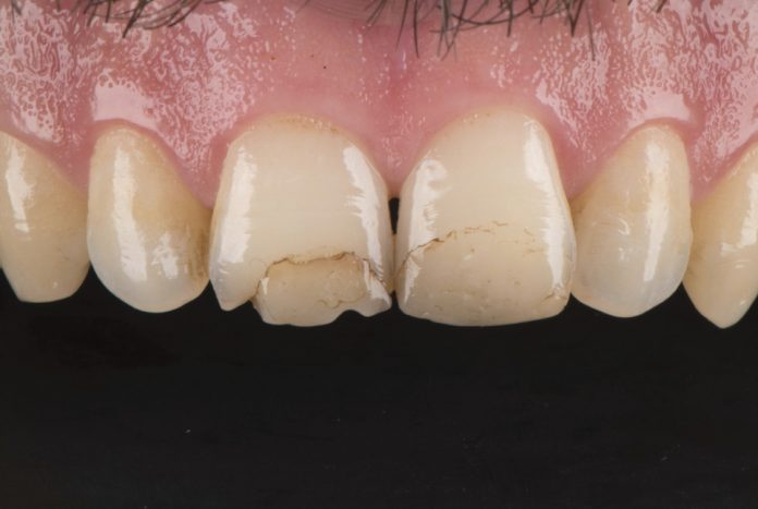 old stained and chipped composite restorations