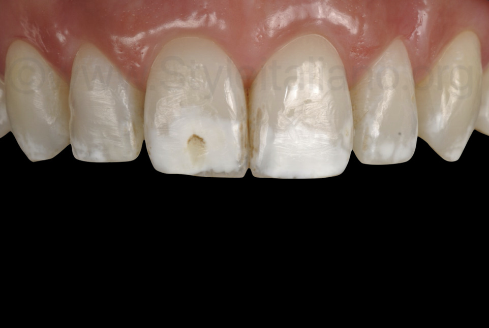 incisors and canines with deminaliralisations after orthodontics