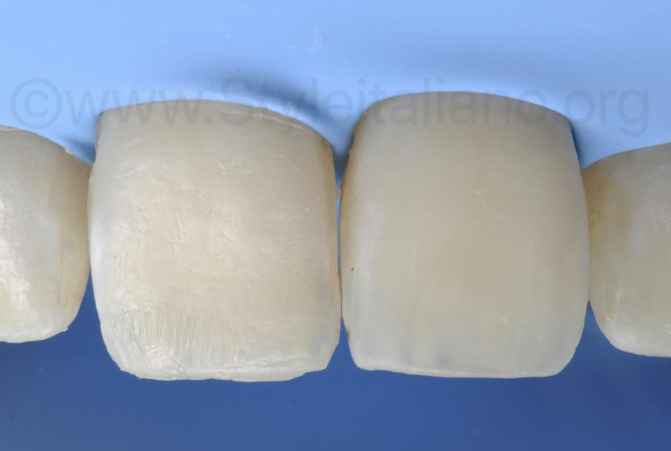 composite restoration of buccal enamel volume of central incisor
