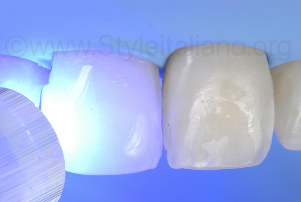 light curing under glycerin air block