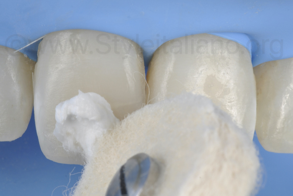 polishing paste for composite gloss by felt wheel