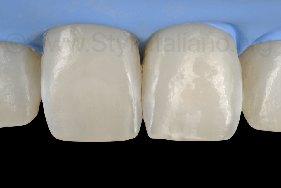aspect on incisors after removal of white spots and restoration