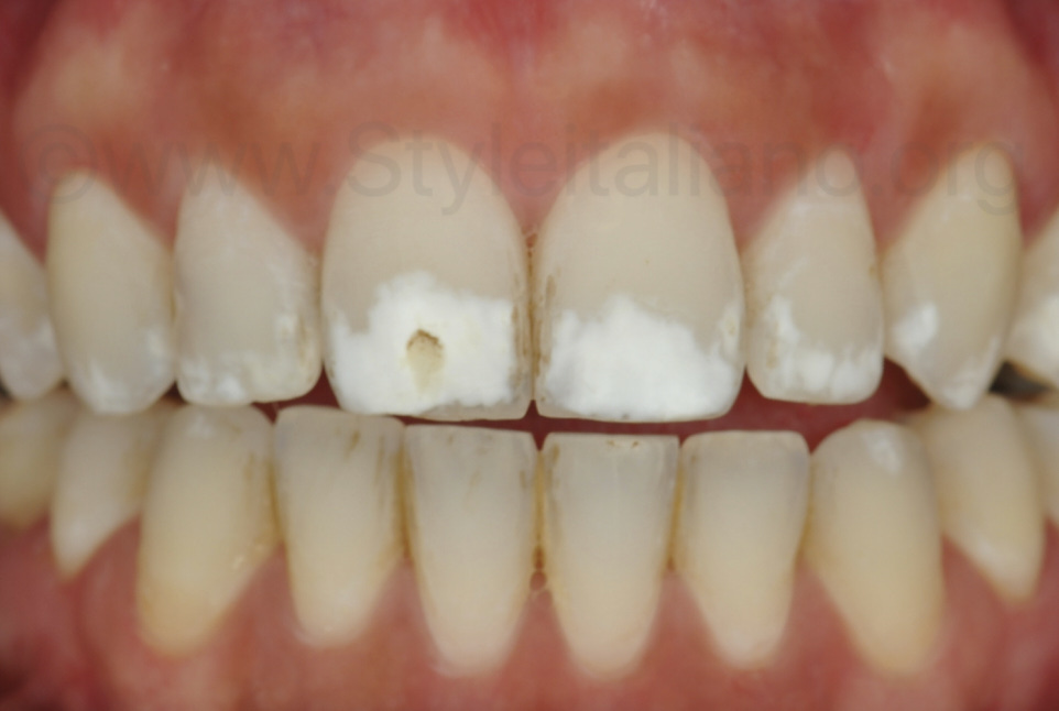 polarised picture showing exact extent of white lesions
