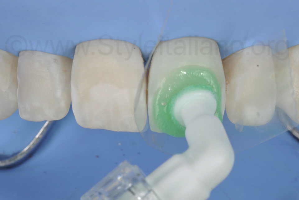 icon etch gel for white lesion infiltration