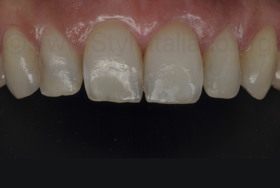 result after infiltration of white spots on upper teeth