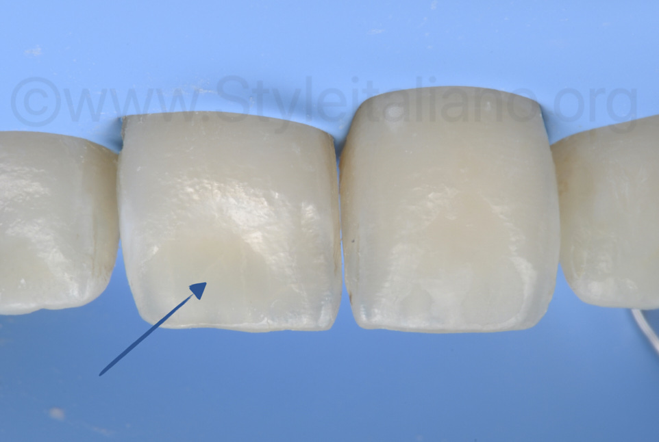 tissue loss after chemical white spot abrasion