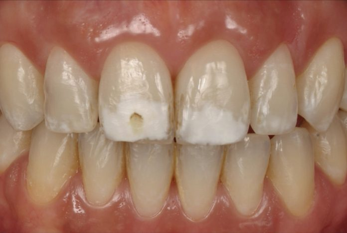 thick white spots on central incisors