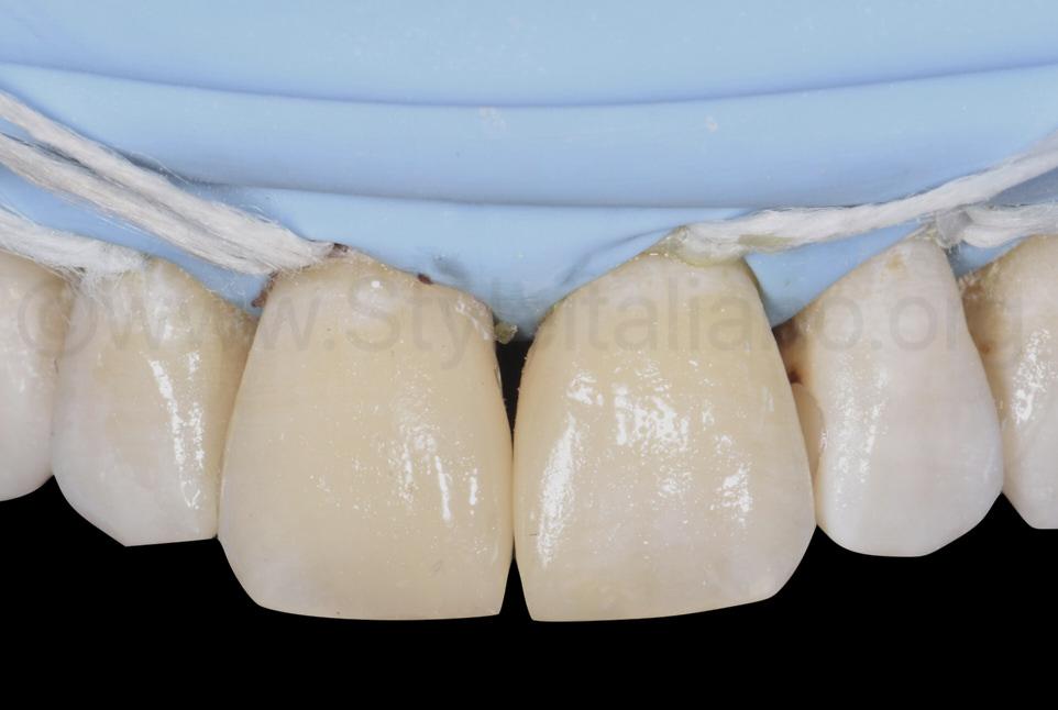 central diastema closed with direct composite restorations
