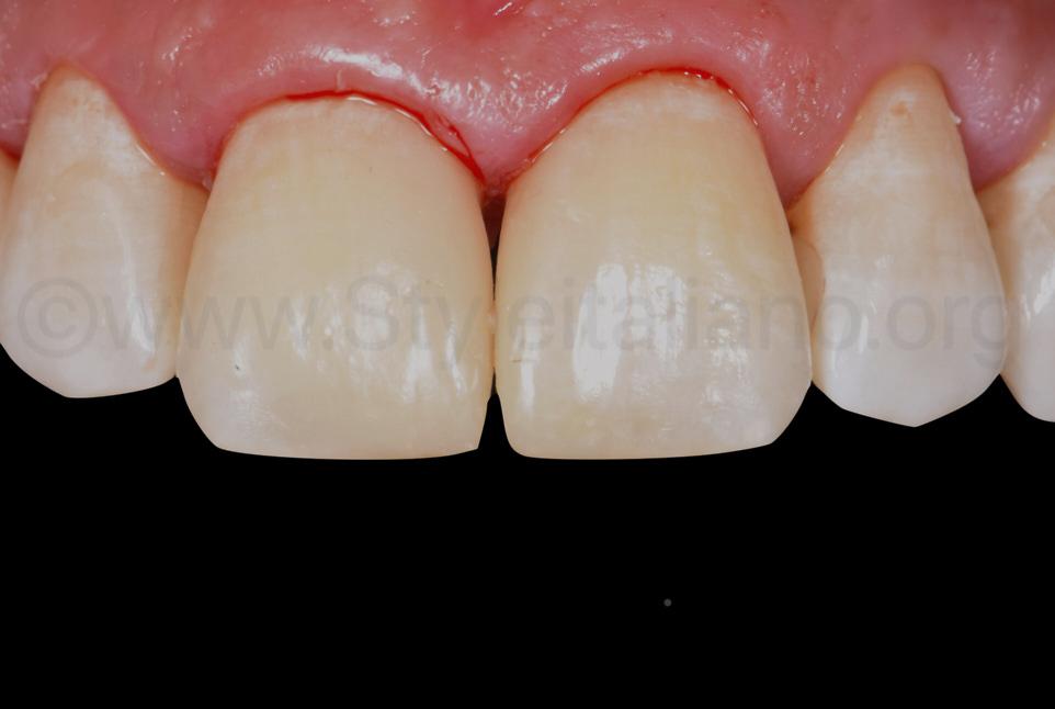 polished composite diastema closures