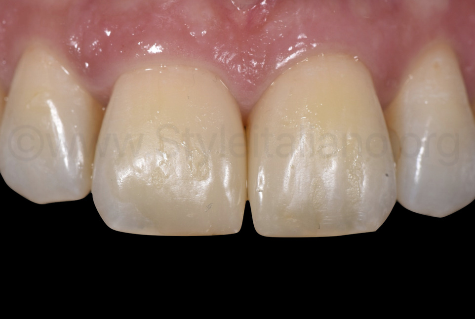 composite restorations on central incisors after six months