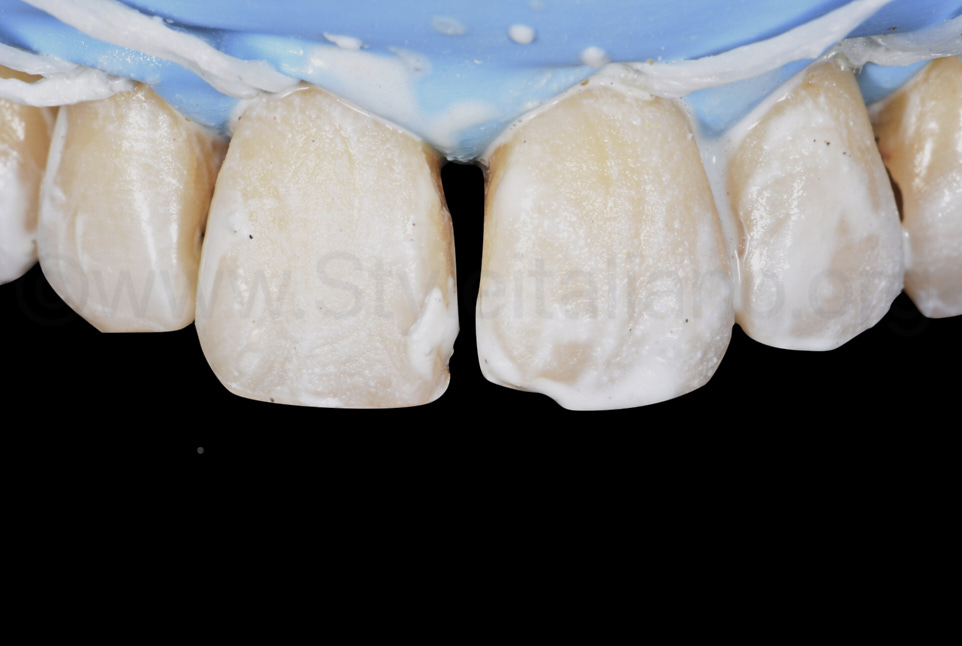 cleaning with pumice paste of sound buccal and proximal surfaces
