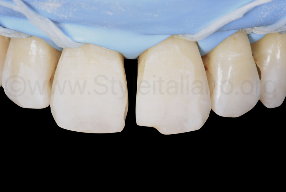 etched enamel on central incisors