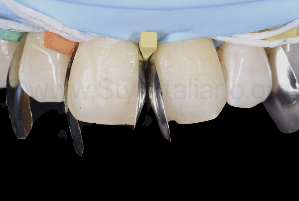 sectional matrices and wooden wedges for diastema closure