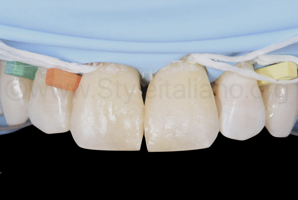 composite restorations before finishing and polishing