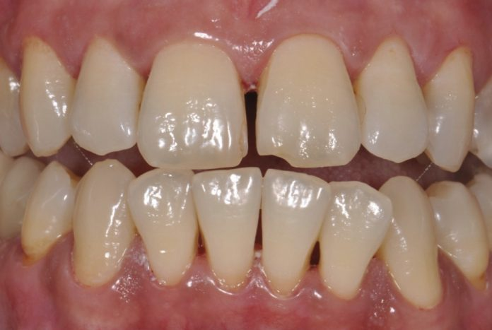 wide diastema between central incisors