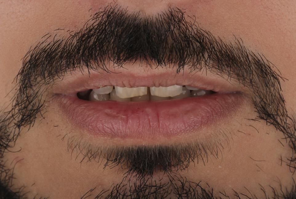 lip rest position