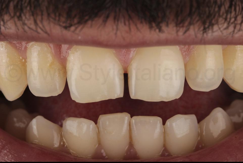 upper spaced teeth