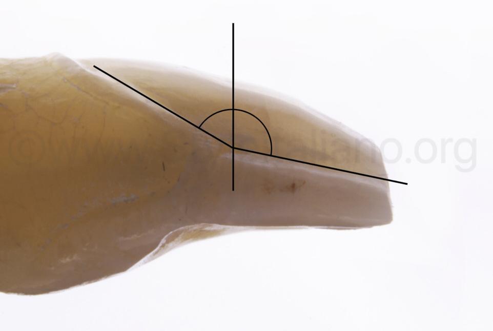 design of proximal margin for veneers