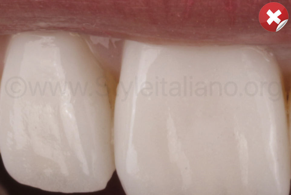 tooth structure showing near the papilla due to wrong preparation of margins