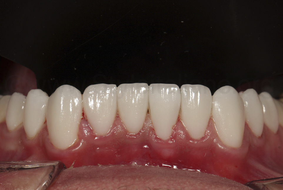cemented veneers on the lower arch