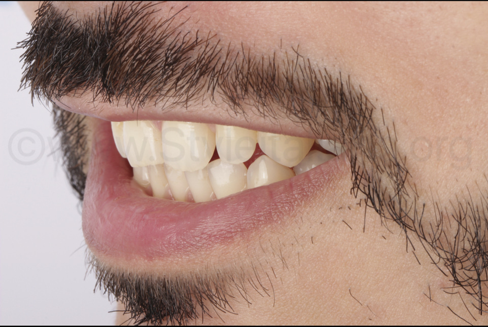 preoperative shy smile before makeover