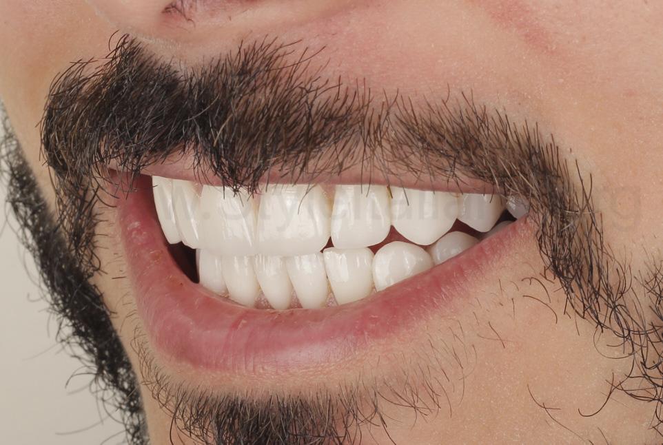 smile enhances with veneer makeover