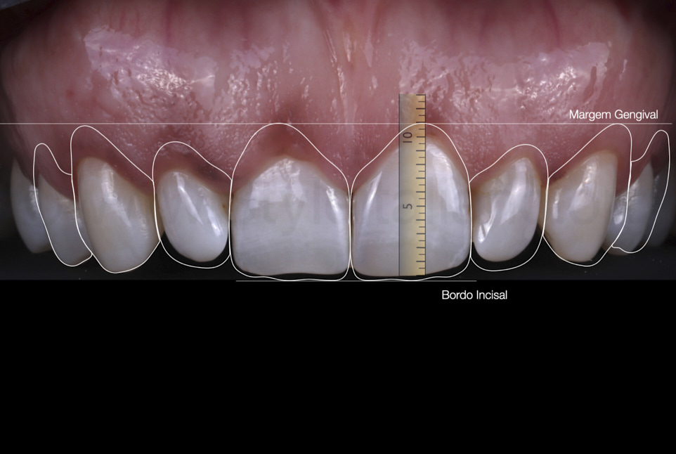 digital smile design for dentist patient communication