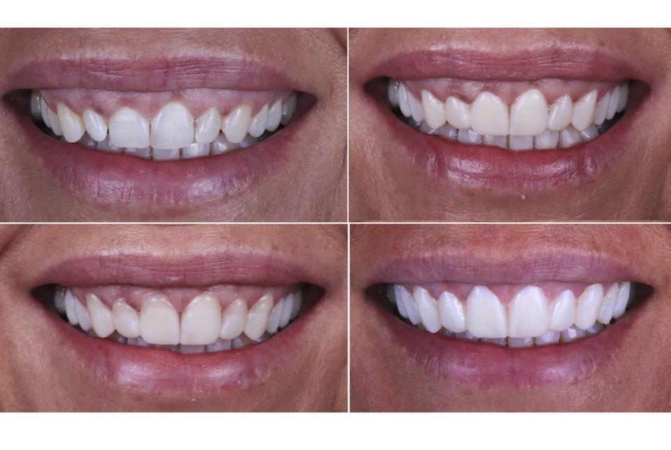 mock-up options for smile makeove