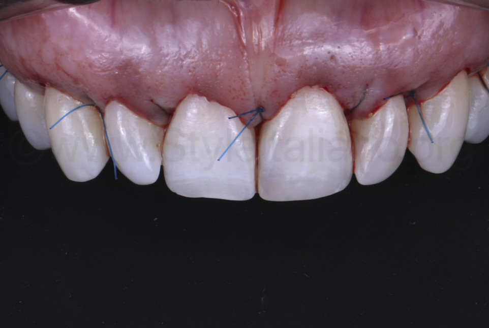 crown lengthening surgery for front teeth