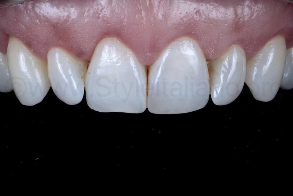 teeth after healing of soft tissues