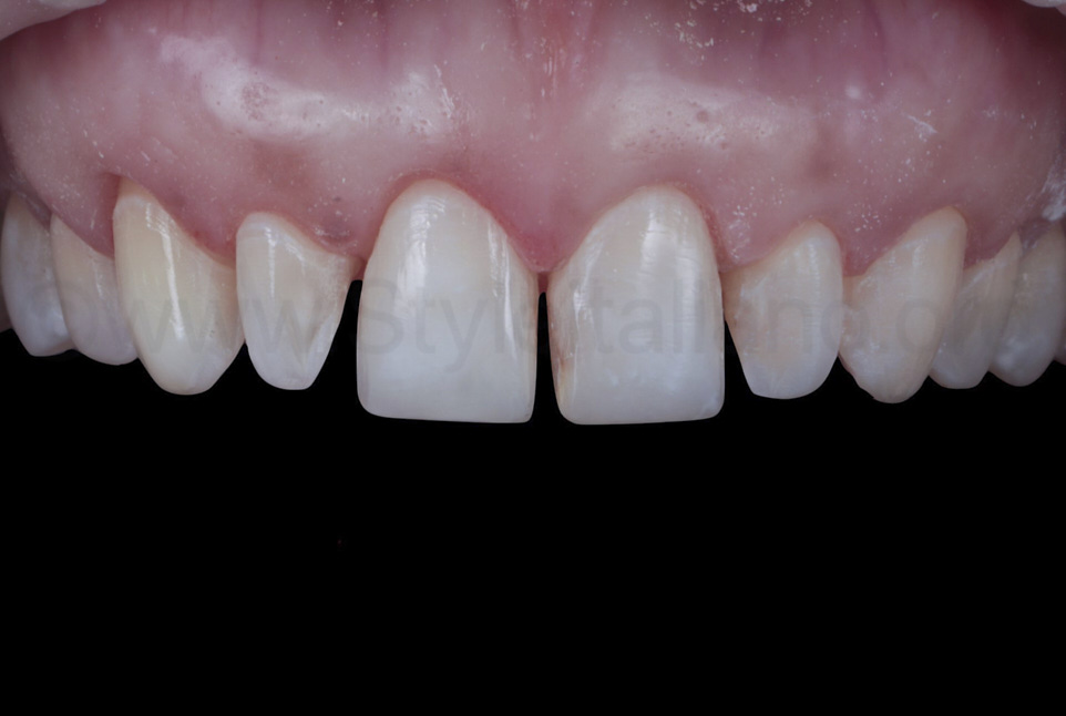 prepared teeth for veneer rehabilitation