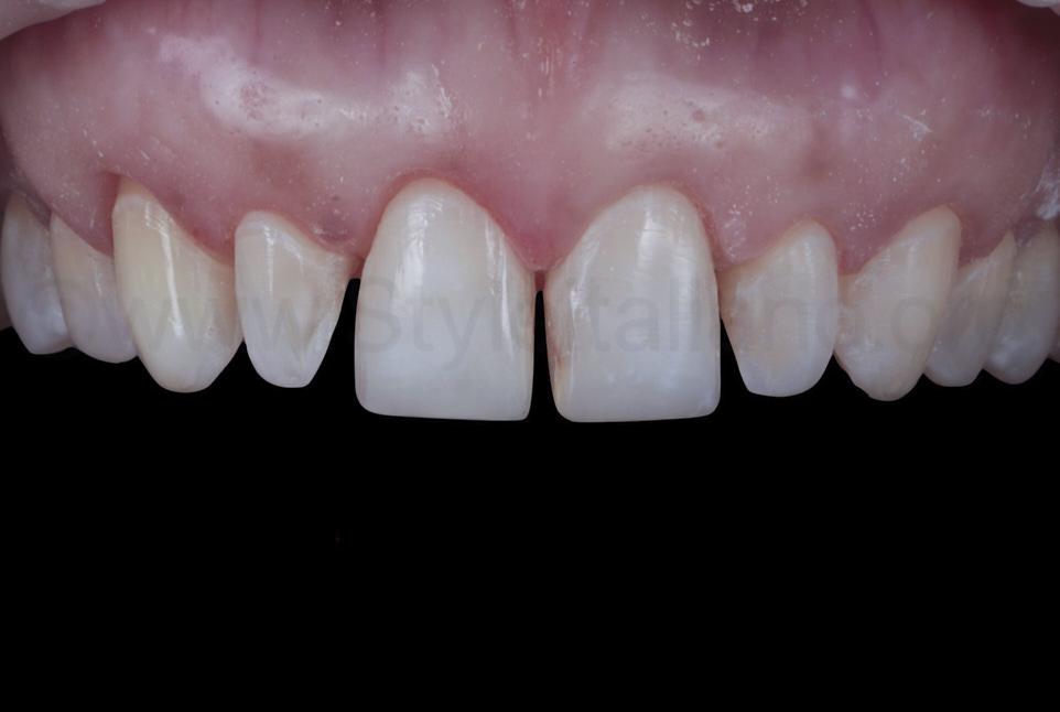 prepared teeth for veneer rehabilitation
