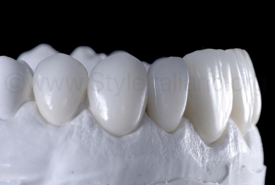 eldspathic ceramic veneers on model