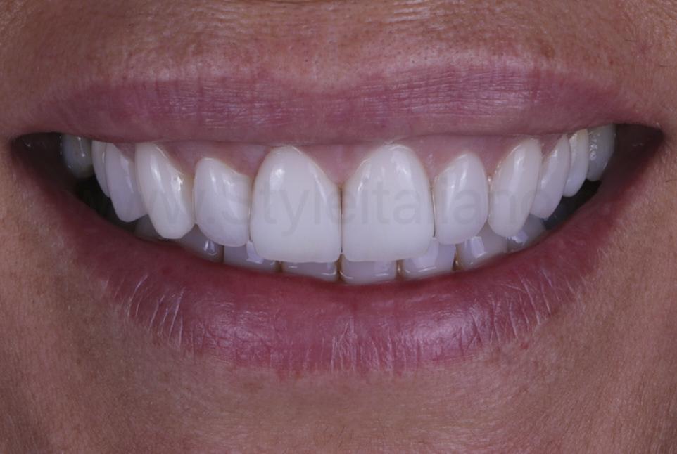 smile after veneer cementation