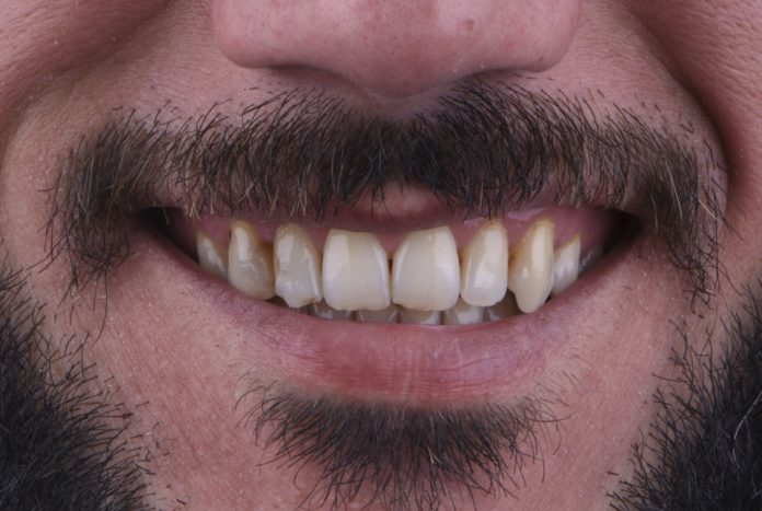 smile with chipped asymmetric teeth