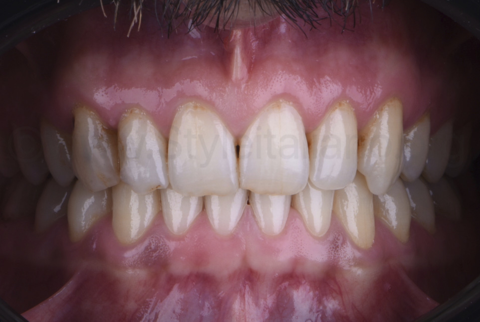 intraoral picture of stained upper teeth