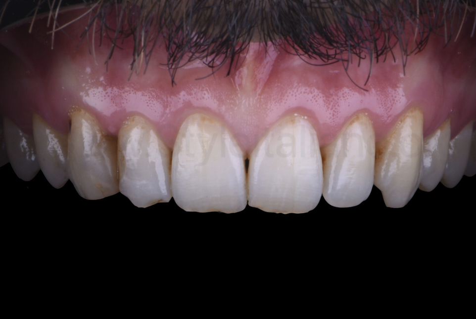 Contrasted picture of stained and decayed teeth