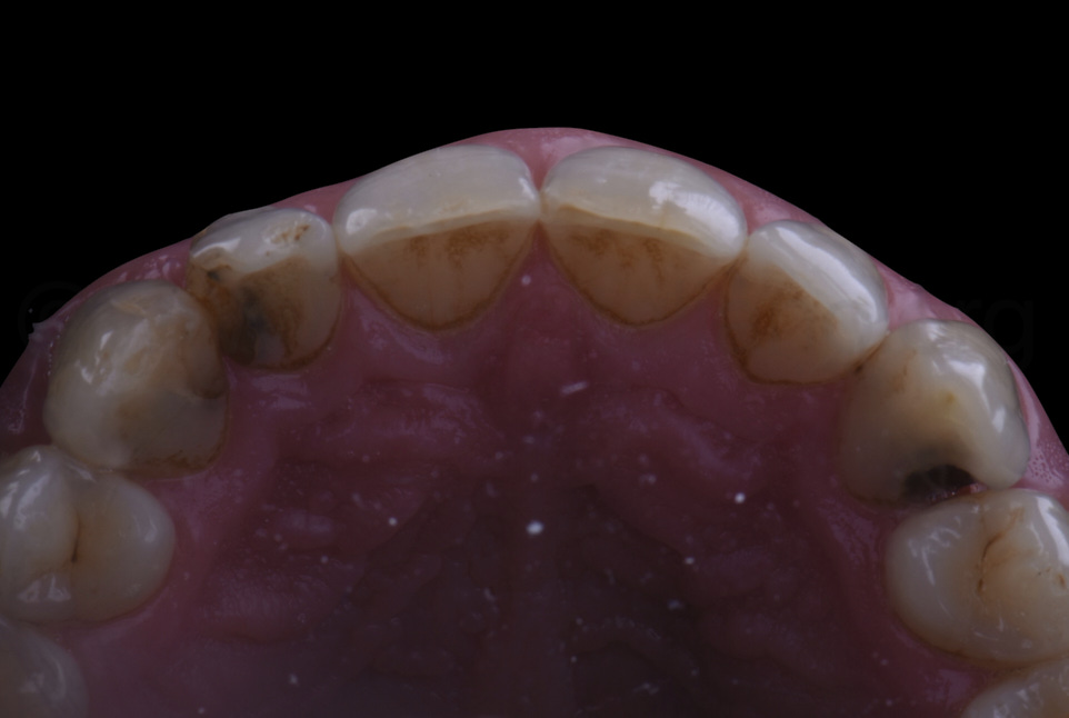 occlusal view of decayed teeth before restoration