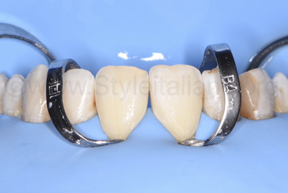 rubber dam retraction with clamps on central incisors
