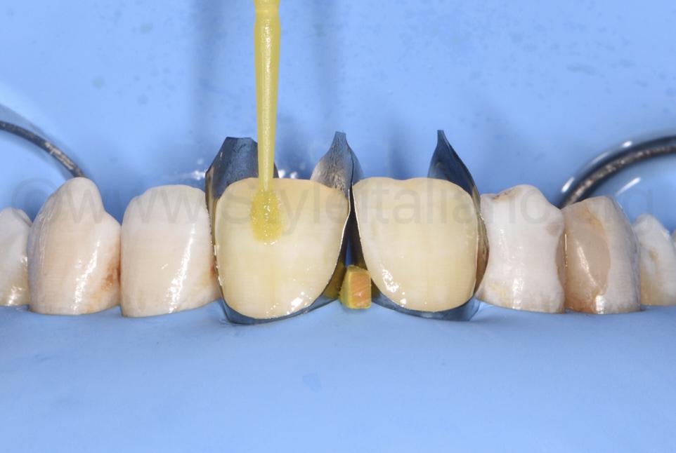 microbrush applying bonding agent on incisors