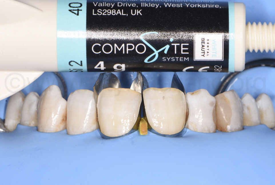 composite white dental beauty shade for aesthetic composite restorations