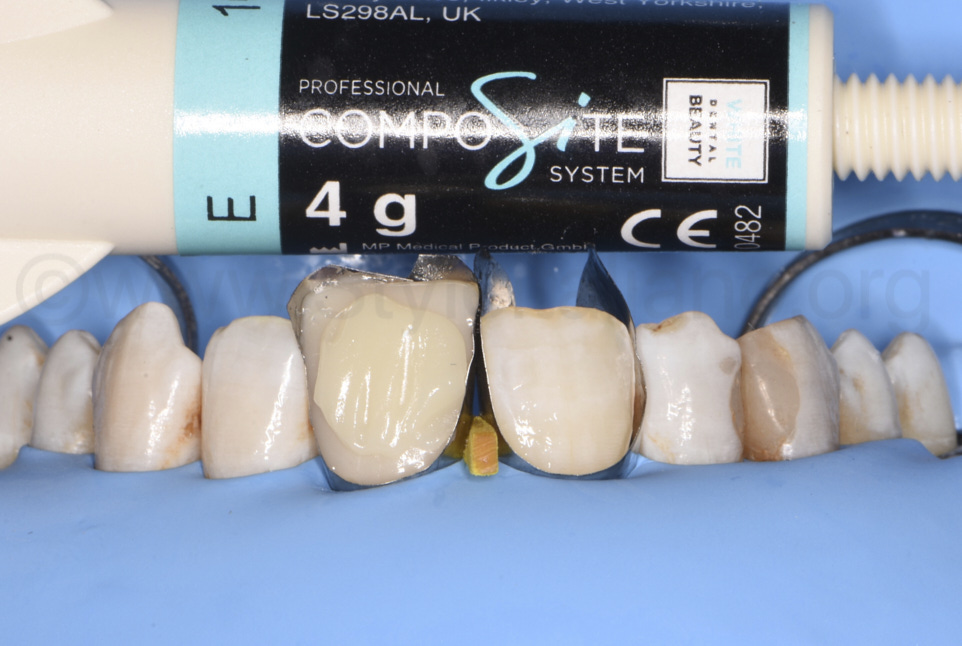 enamel shade by white dental beauty for composite restoration