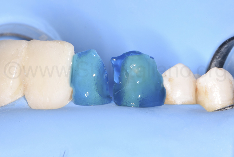 etching gel on lateral incisor and canine